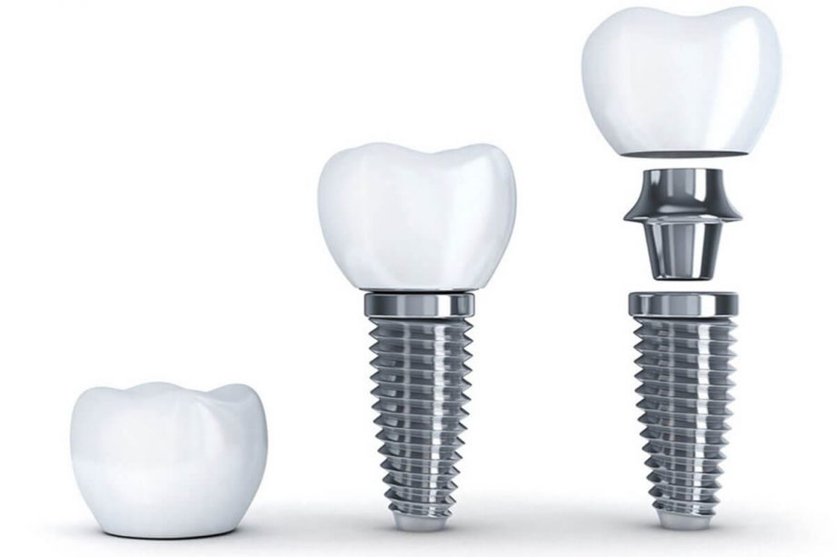 4 Myths About Dental Implants