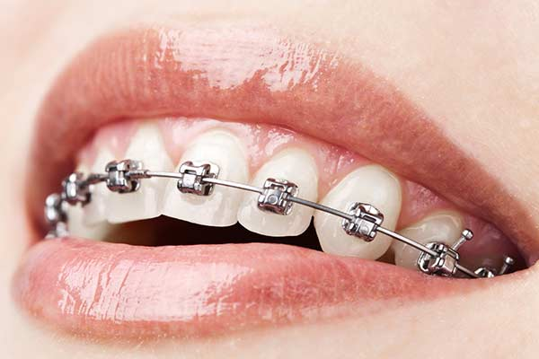 Self-Ligating Braces