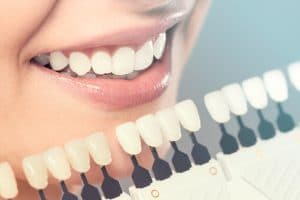 smile-makeover-teeth